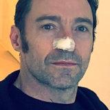 Hugh Jackman si opera di tumore per la sesta volta e lo annuncia su Instagram, lanciando anche un appello ai propri follower