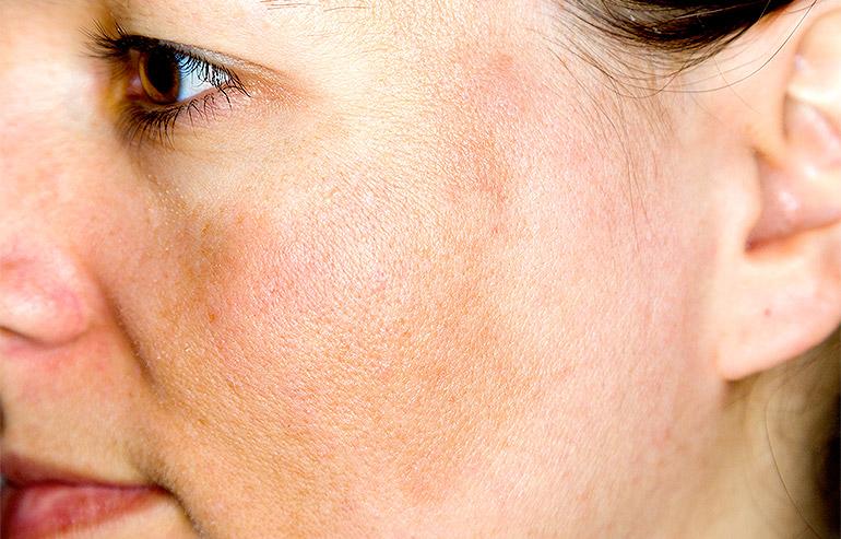 DermalAid - Melasma o cloasma