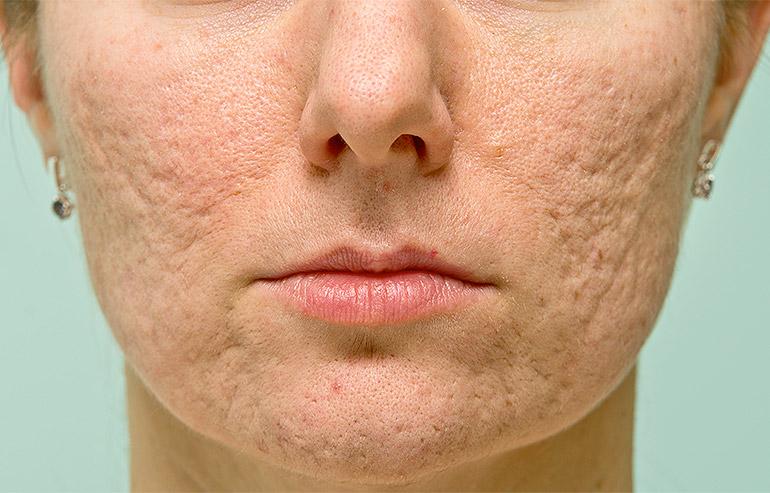 DermalAid - Cicatrici da acne