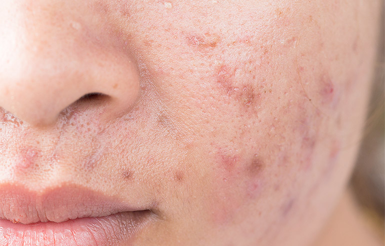 DermalAid - Pigmentazioni post infiammatorie