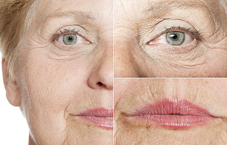 DermalAid - Rughe e invecchiamento cutaneo