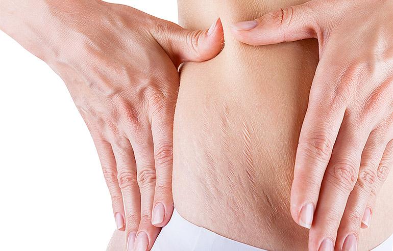 DermalAid - Smagliature/cicatrici